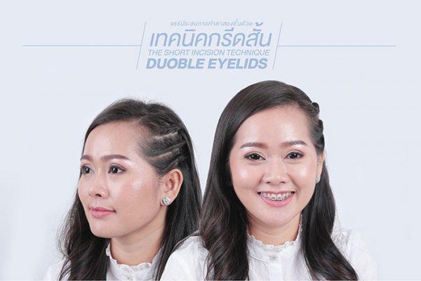 แชร์ประสบการณ์ทำศัลยกรรมชั้นตาแบบกรีดสั้น จากที่เคยมีปัญหาชั้นตาเล็กไม่เข้ากับรูปหน้า ให้ตาสวยหวานมีเสน่ห์มากขึ้น