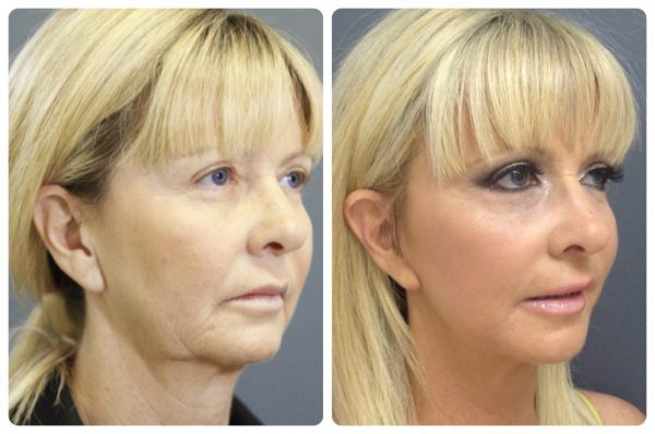 """Mini Face Lift"" เทคนิคการศัลยกรรมผ่าตัดดึงหน้า ลดริ้วรอยให้ใบหน้าเต่งตึง เพิ่มความอ่อนวัยชะลอความชรา"