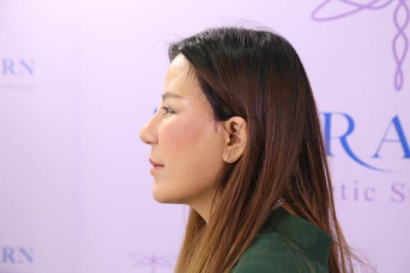 แชร์ประสบการณ์ศัลยกรรมแก้ตาสองชั้น ของคุณก้อย อดีตนางสาวไทยปี 2550 จากชั้นตาพับไม่เท่ากันสู่ปัจจุบันที่มีตาสวยเข้ากับหน้า